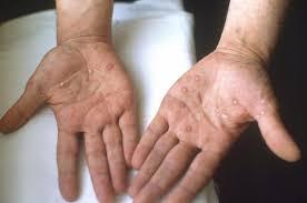 Dermatologie - Clinica Asclepion